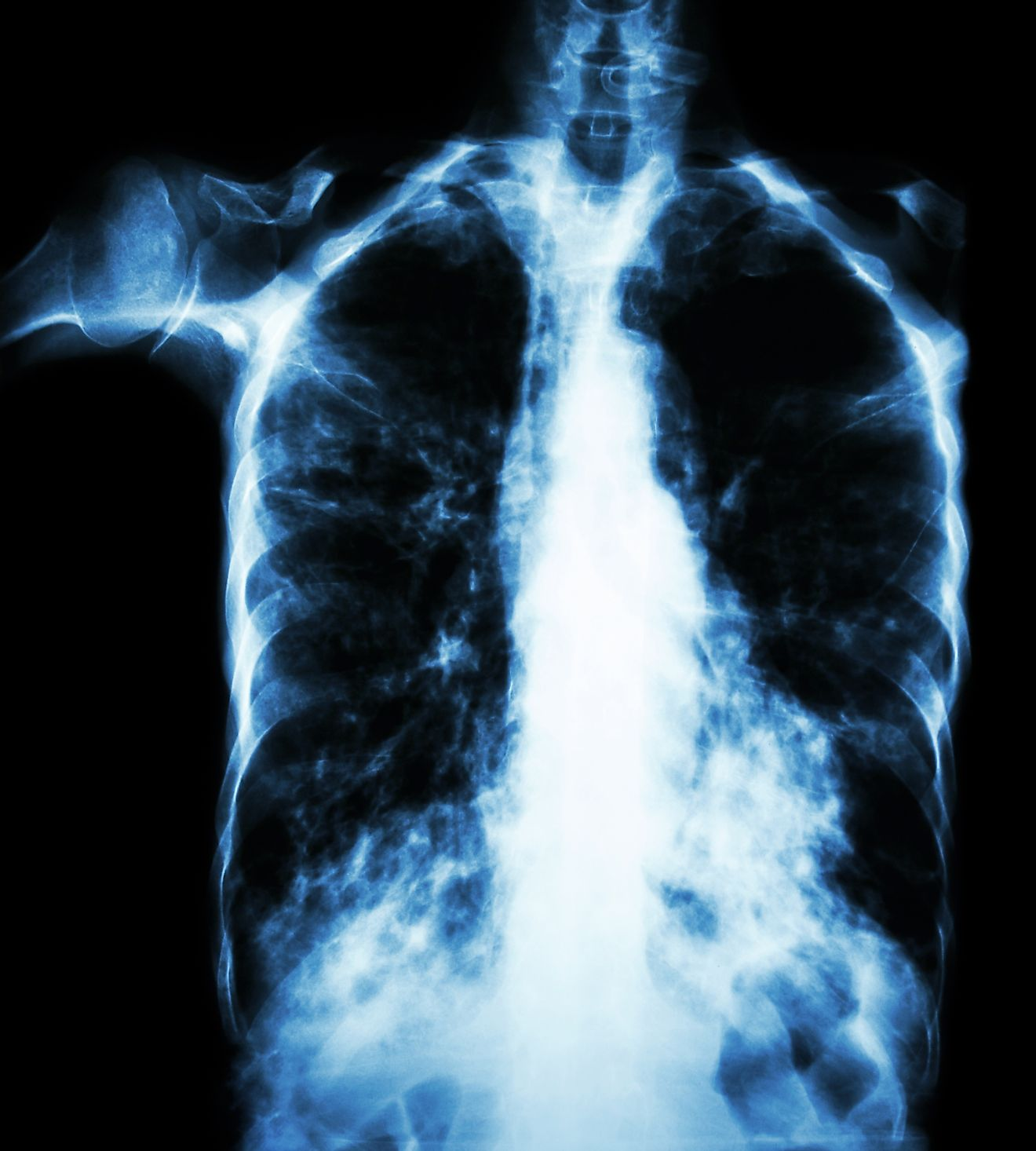 An X-ray of lungs infected with tuberculosis.