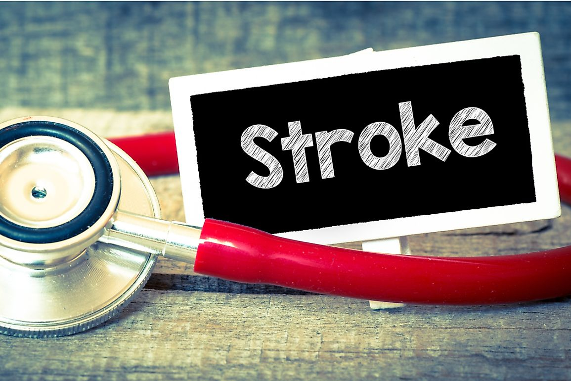 A 9-state region in the southern US is known as the stroke belt due to higher than average rates of stroke.