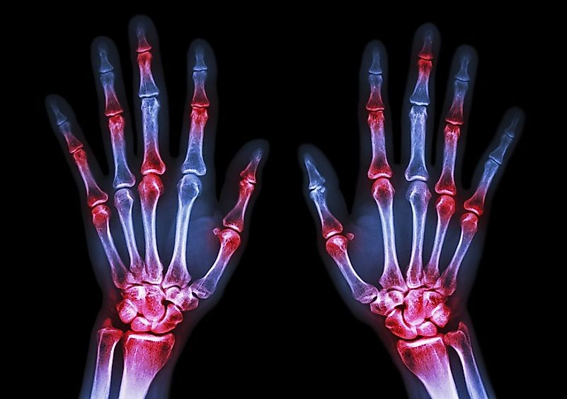 Inflammation of the hand joints in an arthritis sufferer.