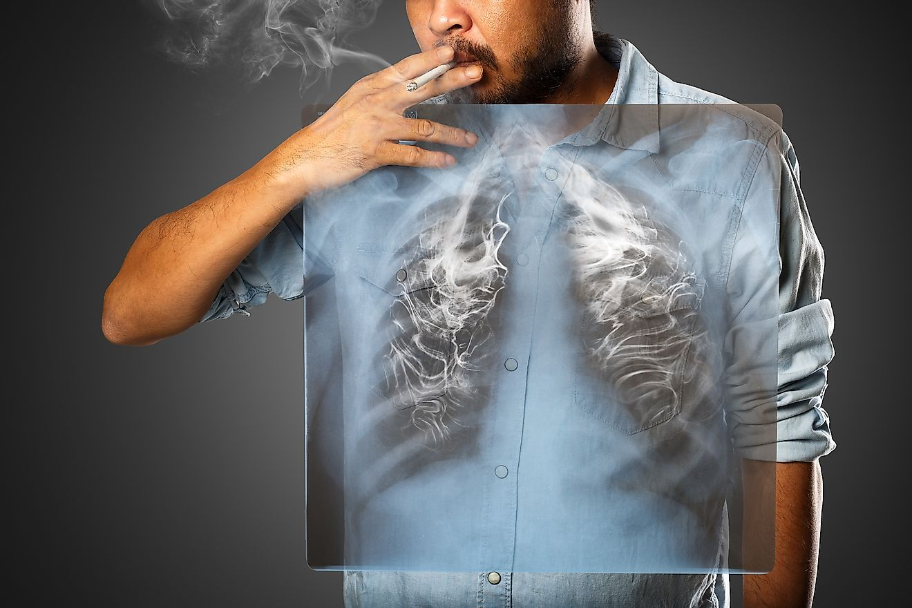Smoking is one of the leading causes of cancer, a disease with a low survival rate. Image credit: Krunja/Shutterstock.com