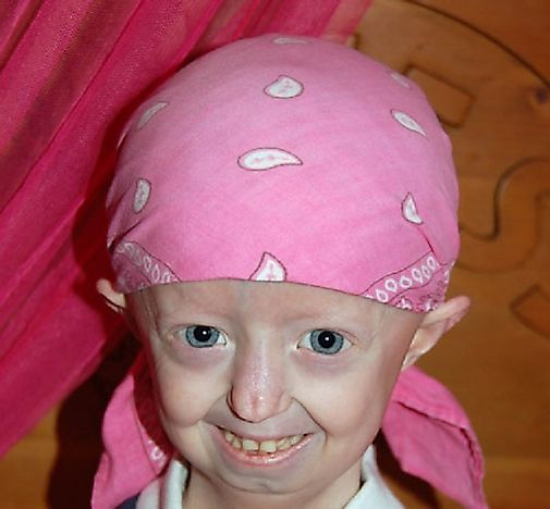 Did You Know The Progeria Disease Can Cause The Young To Grow Old?