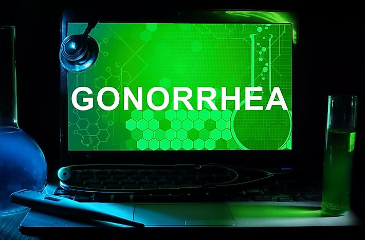 Gonorrhea Facts: Diseases of the World