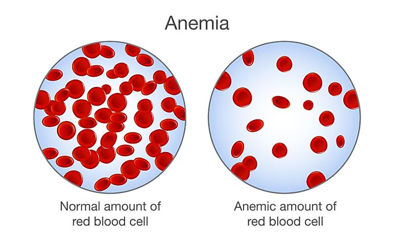 Anemia in Children - Prevalence Around the World