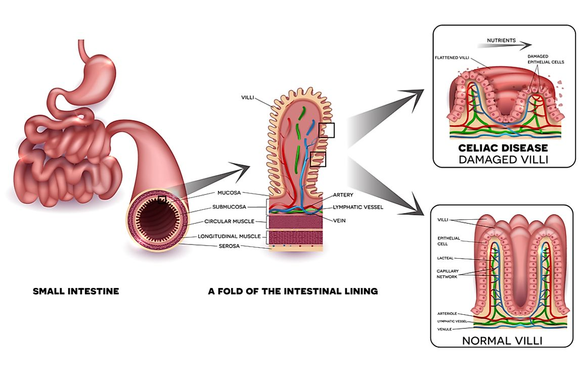 The damage to the small intestine caused my celiac disease results in the malabsorption of nutrients.