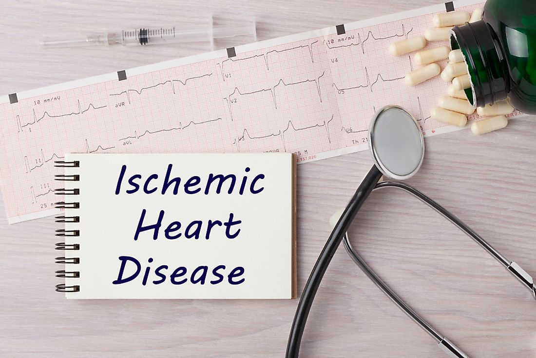 Ischemic heart disease is the leading cause of death for women worldwide.